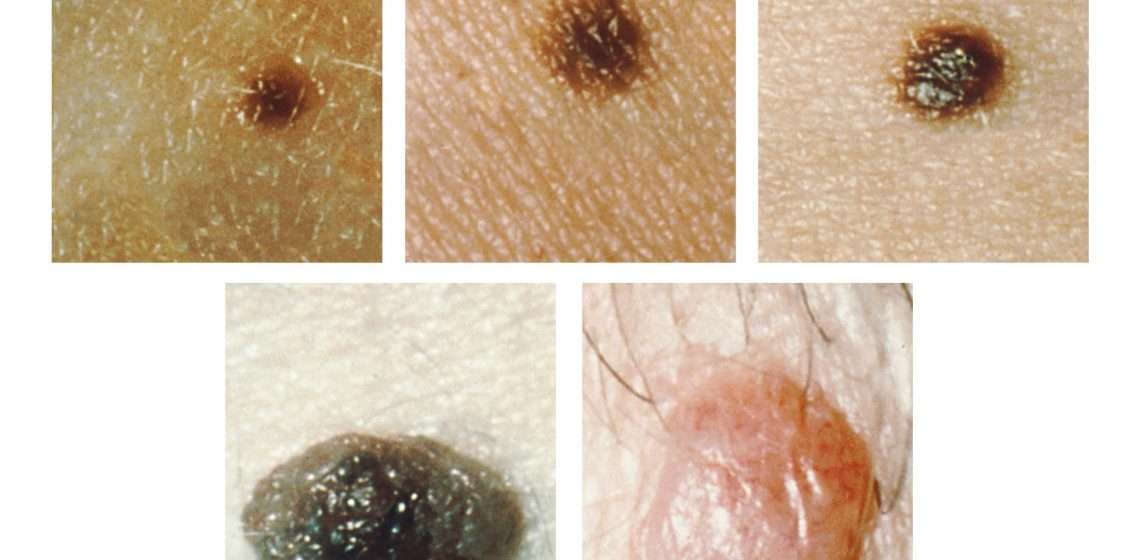 How To Naturally Cure Skin Tags, Moles, Blackheads, Warts, And Age Spots
